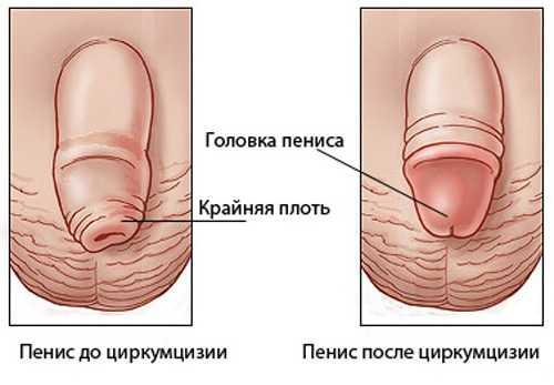 Оральный секс и трещины крайней плоти